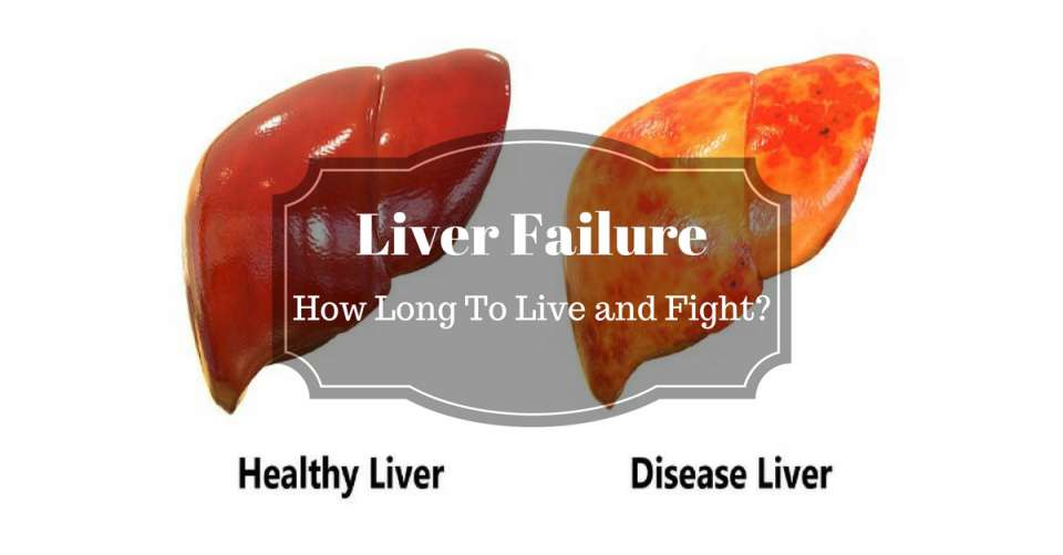 Liver-Failure-how-long-to-live-and-fight